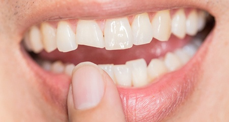 woman pointing at chipped tooth before dental bonding treatment