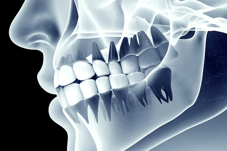 X-ray image of a human jaw with teeth after bone grafting