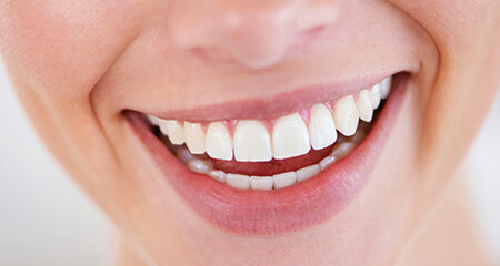 Closeup of flawless smile after dental bonding