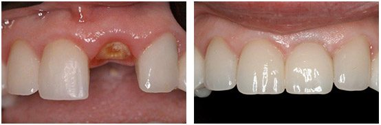 Before & After Single Tooth Dental Implant
