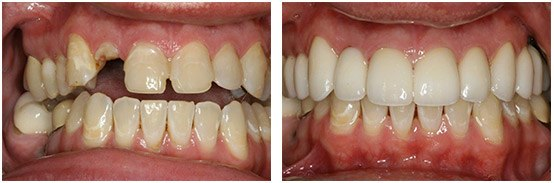 Before & After Single-Tooth Dental Implant With Porcelain Veneers