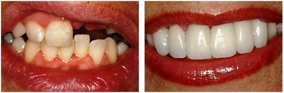 Multiple Teeth Dental Implants & Partials