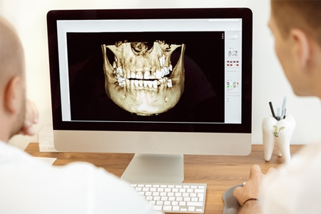 Dental patient seeing a scan of their jaws