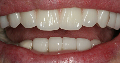 After dental implant supported Dentures