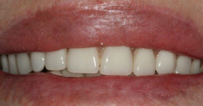 Before dental implant supported Dentures