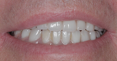 After Dental Implant-Secured Dentures