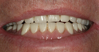 Before Dental Implant-Secured Dentures