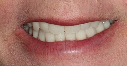 Flawless smile after dental implant retained denture