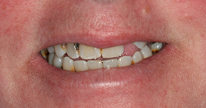 Missing and damged teeth before dental implant retained denture