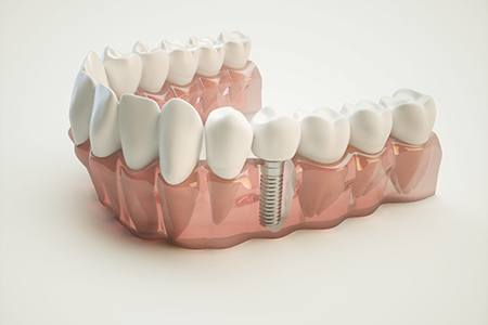 3D render of dental implant in a full arch of teeth