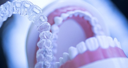 Invisalign aligners being place on a model of a mouth