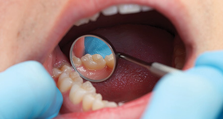 Closeup of repaired smile after metal free dental restoration