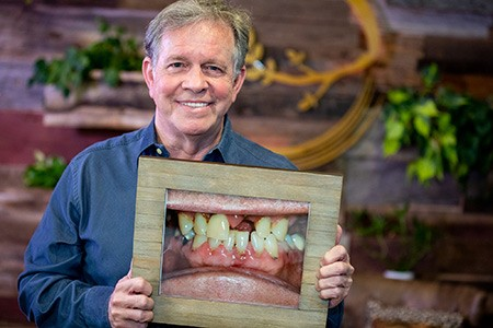 Restore Missing or Loose Teeth - Gainesville, Fl
