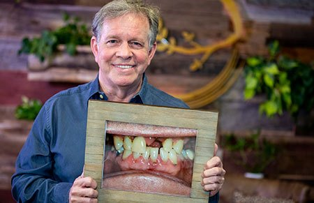 Patient holding picture of smile before impant restoration