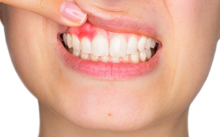 A person holding up their top lip to expose their red soft tissue due to gum disease