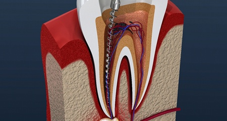 A root canal dissection