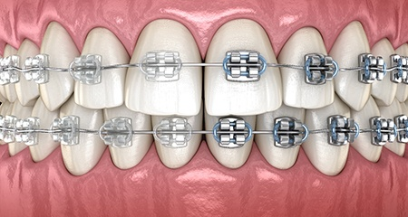 a computer illustration comparing the appearance of clear braces with traditional braces