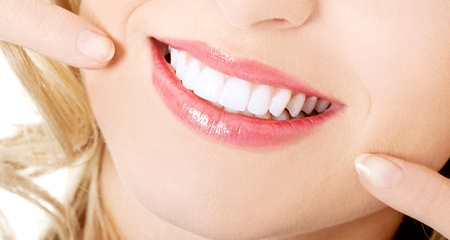 Woman pointing to perfect smile after teeth whitening